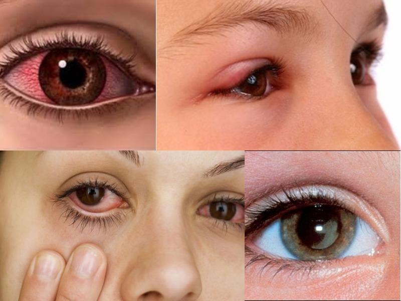 Viêm mắt dị ứng là gì?