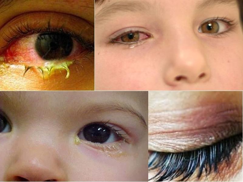 Triệu chứng viêm mắt dị ứng