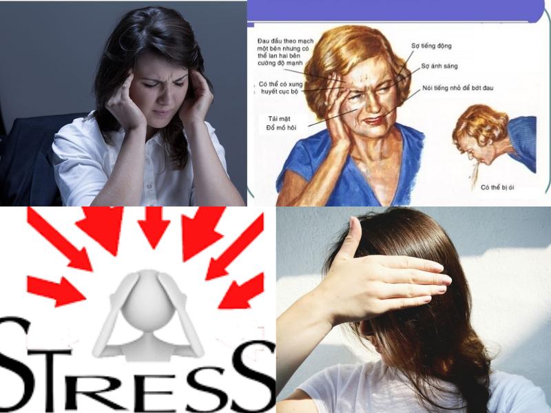 Triệu chứng đau đầu Migraine.