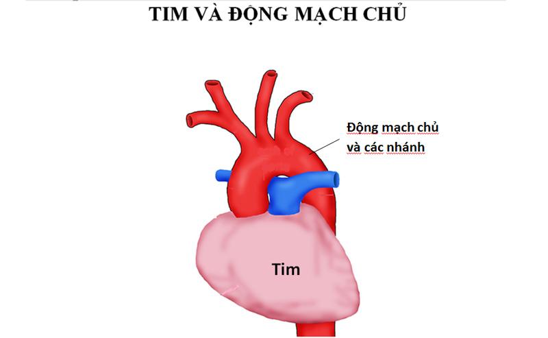 Bóc tách động mạch chủ là gì?
