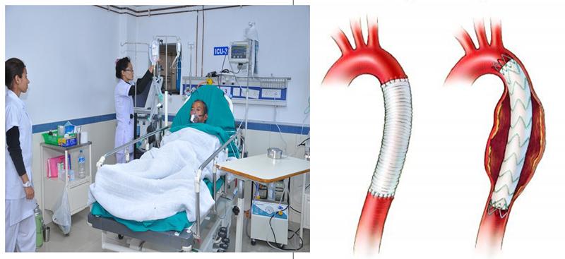 Điều trị bóc tách động mạch chủ