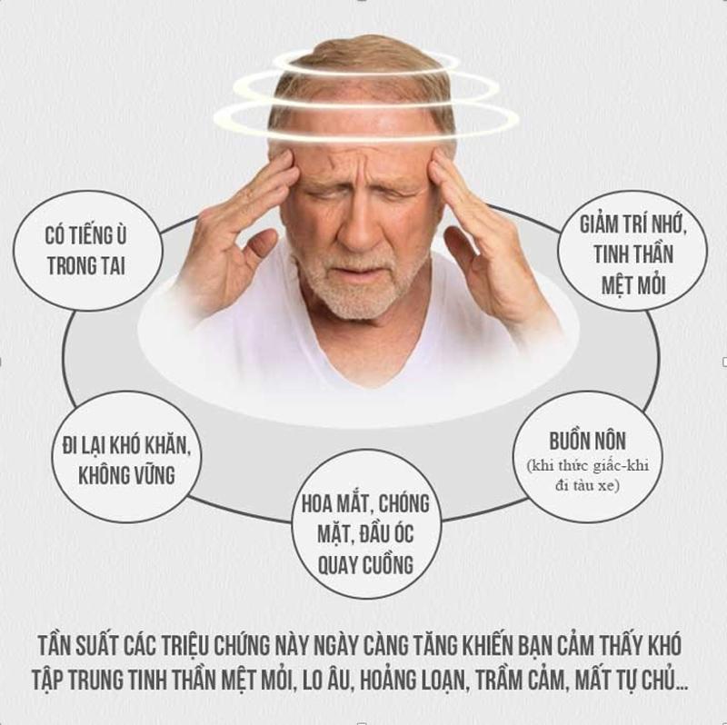 Triệu chứng của rối loạn tiền đình