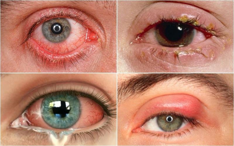 Triệu chứng của viêm kết giác mạc