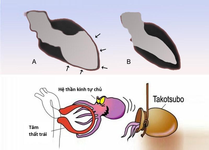 Bệnh Takotsubo là gì?