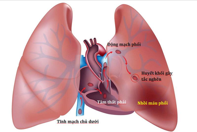 Bệnh Thuyên tắc phổi là gì?
