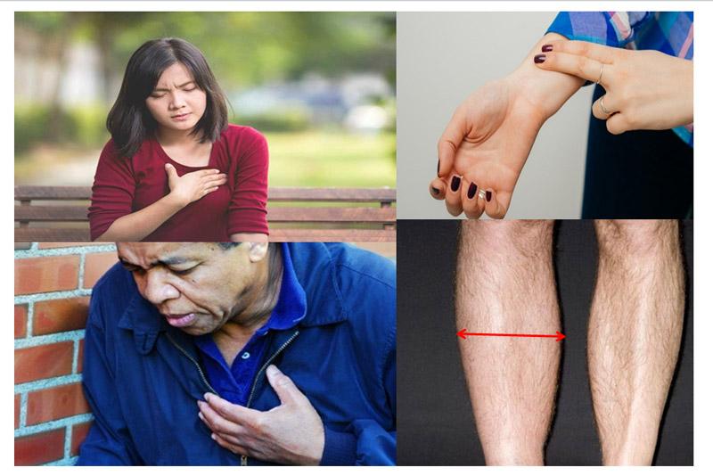 Triệu chứng bệnh Thuyên tắc phổi