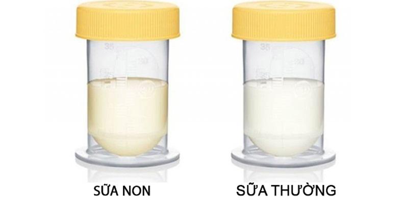 Colostrum có màu vàng nhạt, chất đặc sánh, là sản phẩm đầu tiên trong vòng 72 giờ sau khi mẹ sinh em bé