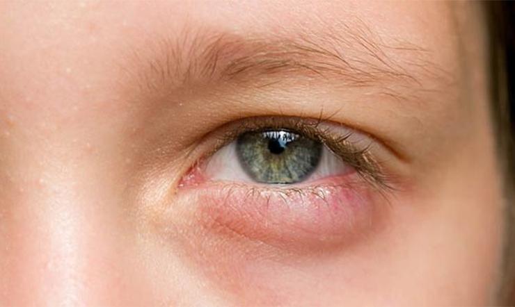 Cách chữa mắt sưng húp hiệu quả