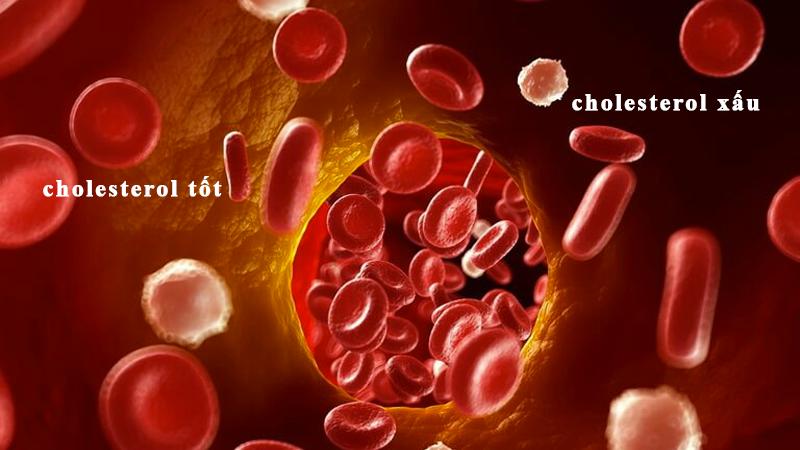 Chiết xuất tỏi đen có thể làm tăng HDL (cholesterol tốt) và giảm LDL (cholesterol xấu)