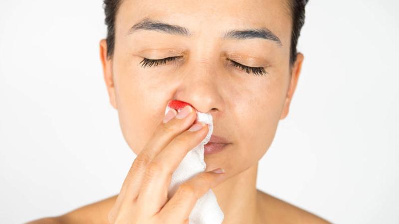 Rau kinh giới giúp trị chảy máu cam