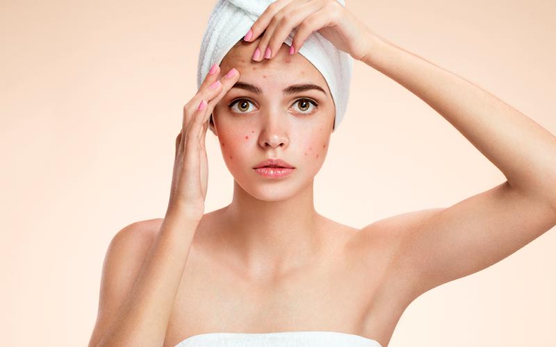 Cung cấp dưỡng chất quá nhiều, da sẽ hấp thu không kịp dẫn đến quá tải. Việc đắp mặt nạ thường xuyên cũng khiến da mất đi lớp bảo vệ bên ngoài, khiến da mỏng đi, dễ kích ứng, nổi mẩn đỏ và ngứa rát.