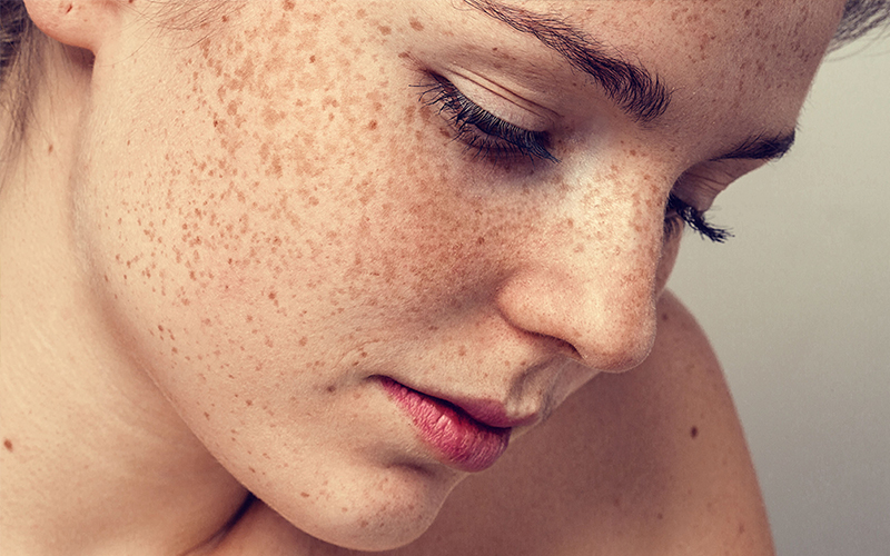 trà xanh kết hợp với sữa ong chúa sẽ giúp bạn làm sạch da, loại bỏ những vết bụi bẩn và vi khuẩn là nguyên nhân gây ra mụn