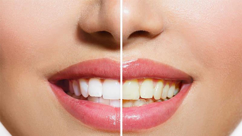 Bột than hoạt tính có tác dụng làm trắng răng