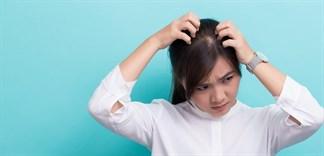 Cách phòng ngừa nấm tóc gây ngứa da đầu vào mùa mưa