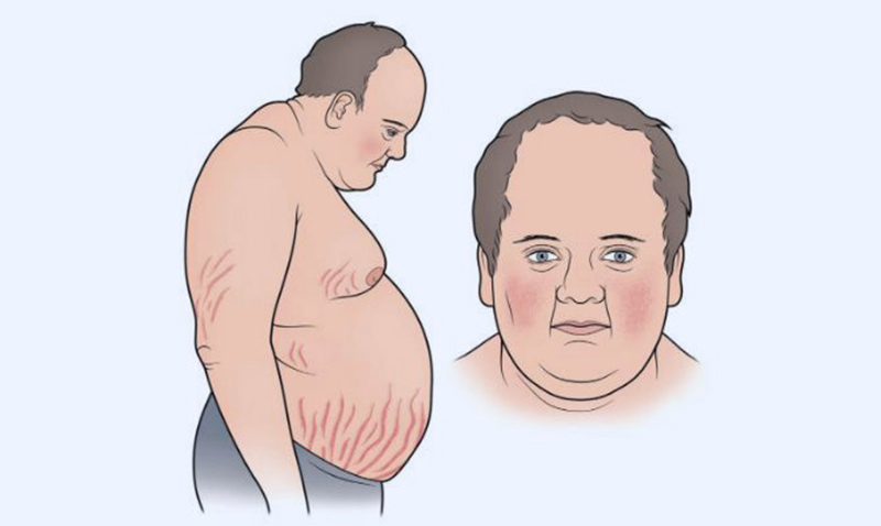Bệnh Cushing là gì?
