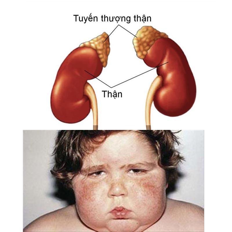 Nguyên nhân gây bệnh Cushing