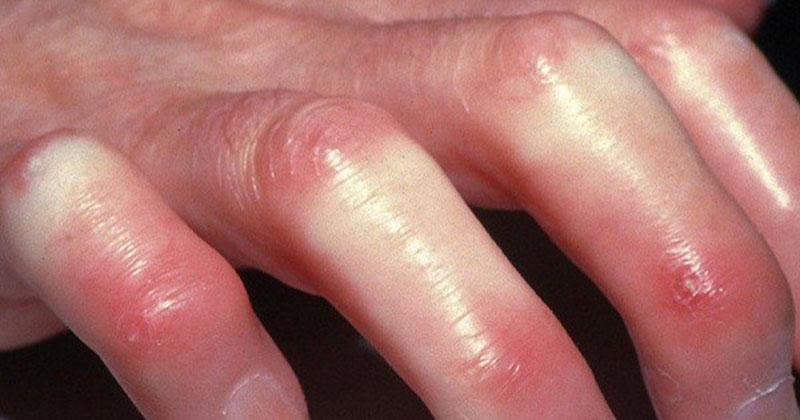 Bệnh xơ cứng bì là gì?