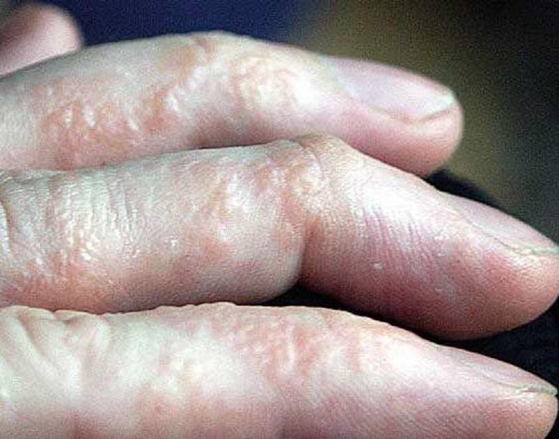 Bệnh tổ đỉa là gì, nguyên nhân mắc bệnh