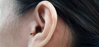 Kiến, côn trùng chui vào tai, cần làm ngay theo hướng dẫn sau