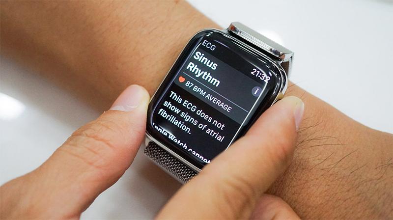 Apple Watch S4 đã có thể sử dụng được ứng dụng đo điện tâm đồ ECG - ảnh 2