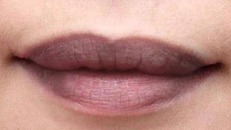 Đoán bệnh qua màu sắc của môi để biết gặp tình trạng gì về sức khoẻ