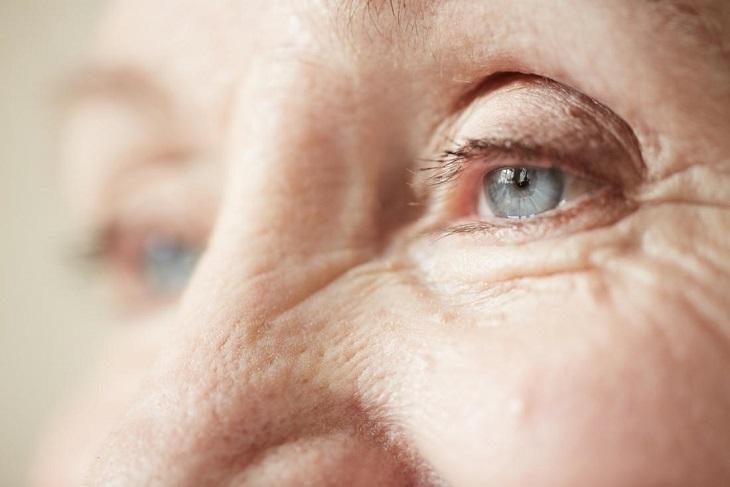 Người mắc các bệnh về mắt không nên dùng tỏi đen