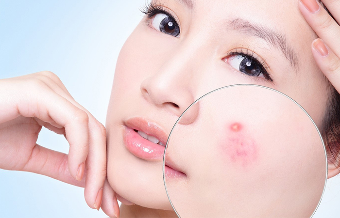 Salicylic acid giúp trị mụn