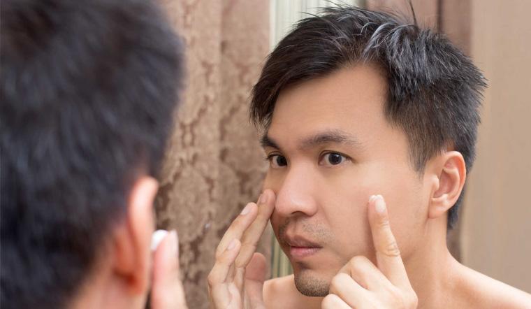 Da sạch mụn hết thâm với 5 loại kem trị mụn dành cho nam