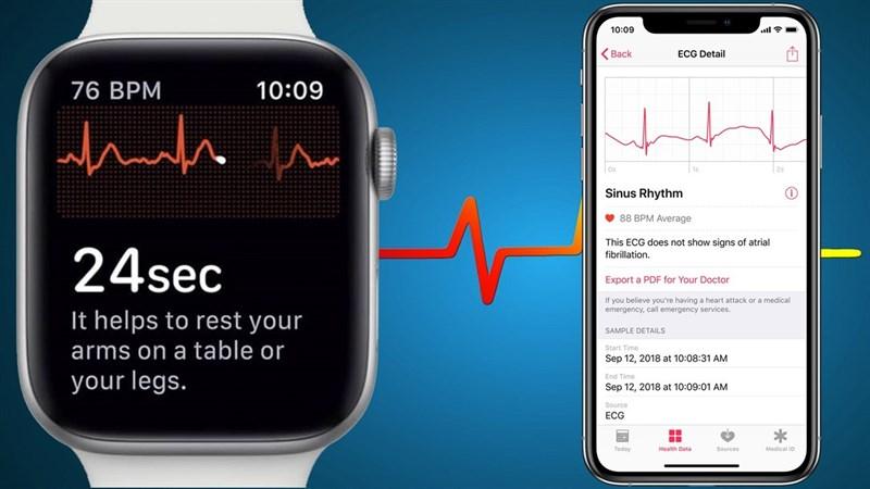 Tính năng đo điện tâm đồ ECG trên Apple Watch có mặt ở nhiều quốc gia