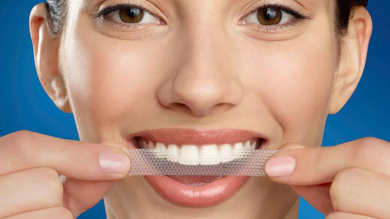 Tác hại của miếng dán trắng răng