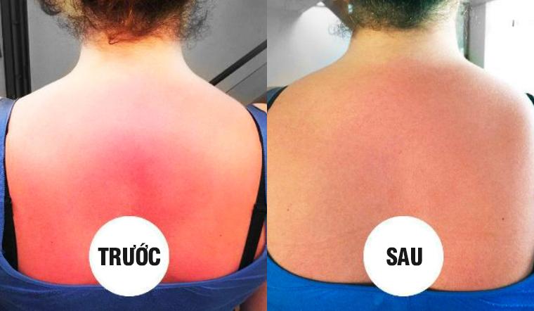 """Cách """"cứu"""" làn da bị cháy nắng nhanh chóng và đơn giản với 1 quả cà chua"""