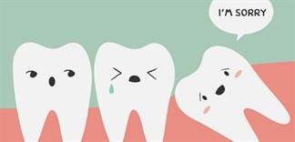 Răng khôn là gì? Bạn nên làm gì khi bị đau răng khôn?