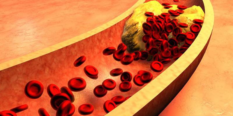 Nấm rơm giảm cholesterol