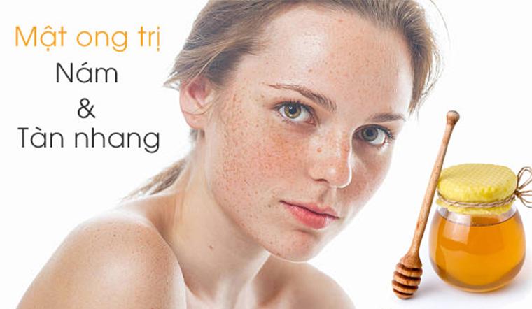 Ngoài trị mụn, mật ong còn có thể trị tàn nhang