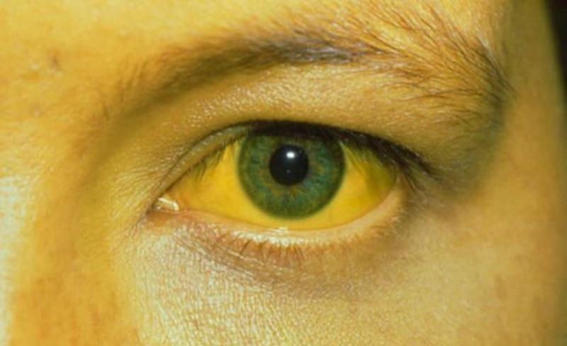 Phát hiện sớm qua các triệu chứng