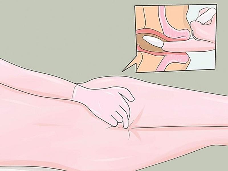 Điều trị bệnh trĩ nội khoa