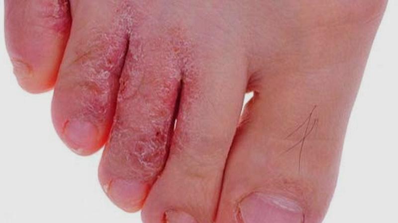 Trị bệnh ngoài da