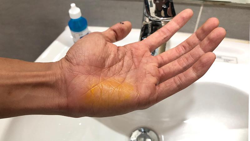 Sơn dính trên tay rửa hoài chẳng ra, chỉ với ít cồn là tẩy được ngay