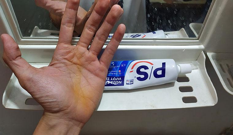 Cách tẩy sạch nghệ trên da với kem đánh răng