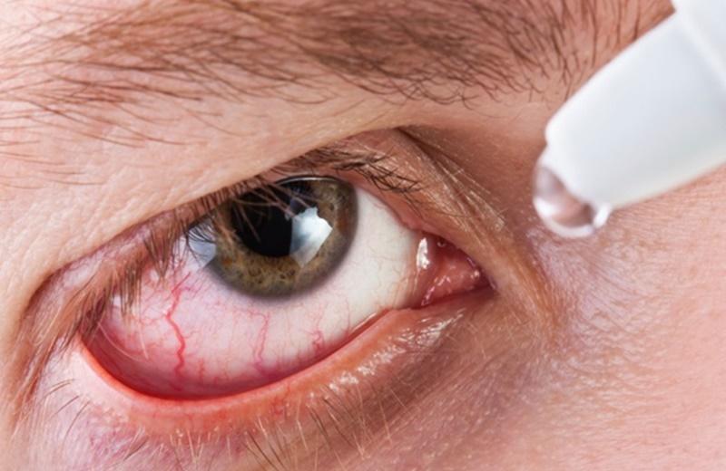 Đeo kính áp tròng thường xuyên có gây hại cho mắt không?