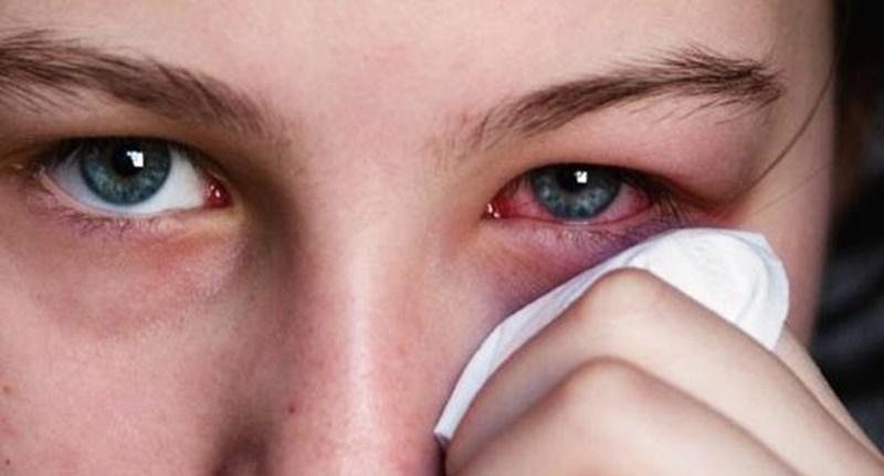 Các nhược điểm khi dùng kính áp tròng