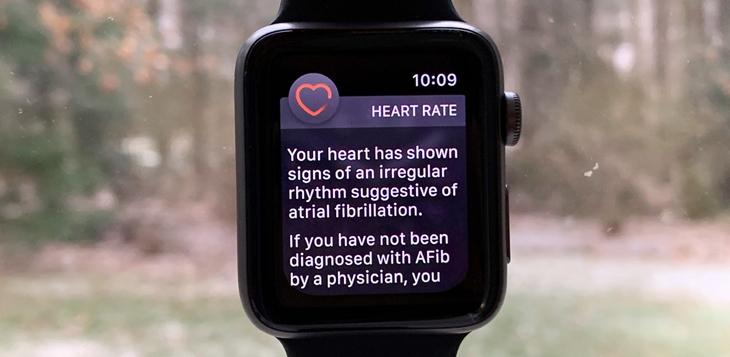 Thông báo về nhịp tim bất thường trên Apple Watch