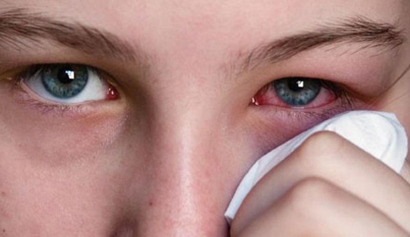 Triệu chứng bệnh lẹo mắt