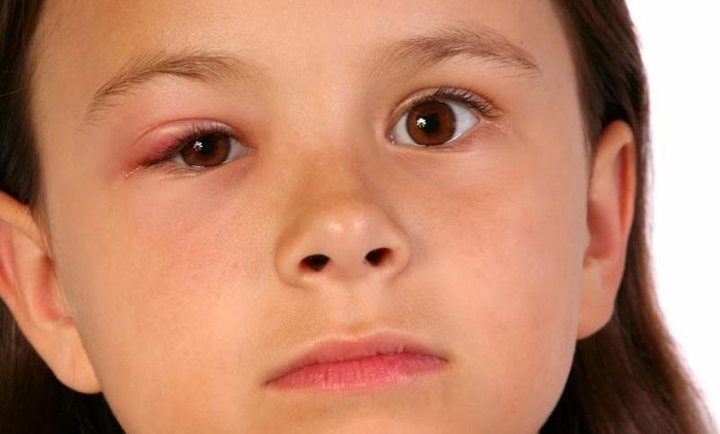 Bệnh chắp mắt là gì?