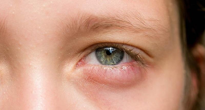 Nguyên nhân bị chắp mắt