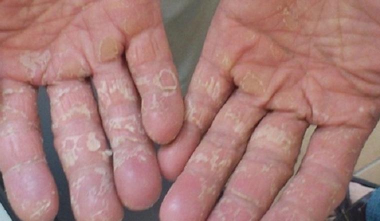 Nước tẩy ăn mòn da tay, hãy thực hiện các cách này tay sẽ mềm mịn hẳn