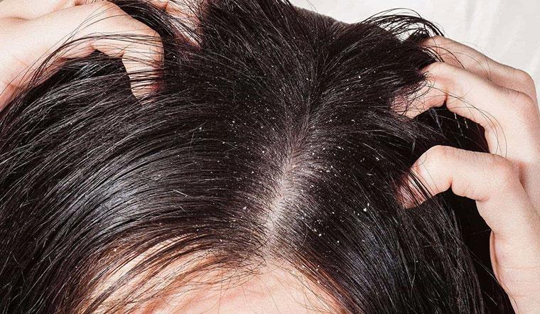 Top dầu gội trị ngứa da đầu, gội một lần hết ngứa hoàn toàn