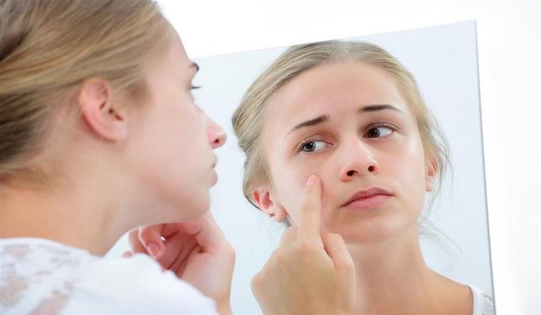 AHA có đẩy mụn như BHA và cách chăm sóc làn da sau khi dùng AHA