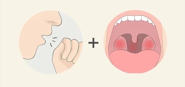 Chú ý đến triệu chứng đau họng kèm theo ho