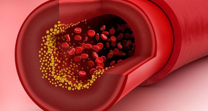 Cholesterol là gì? Nhóm thực phẩm giàu cholesterol tốt và xấu cần biết